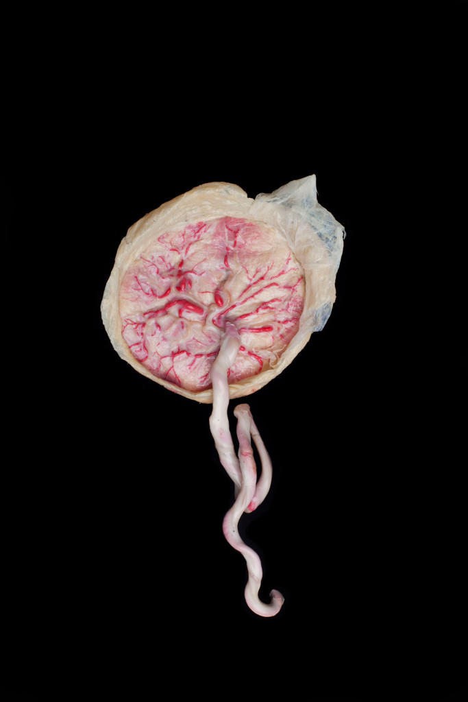 Contemporary abstract art of a plastinated placenta against black background shows the life giving and life taking qualities of this organ.